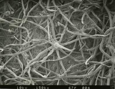 Scanning Electron Microscope (SEM) research, Croton